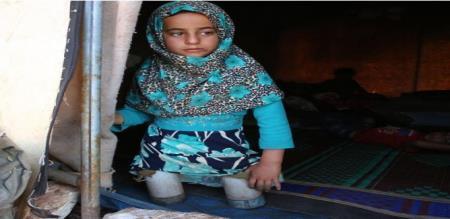 little girl using empty tin as artificial leg