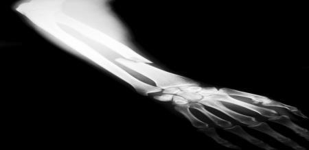pakistan batssman bone damage
