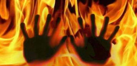 girl burnt out at collector office