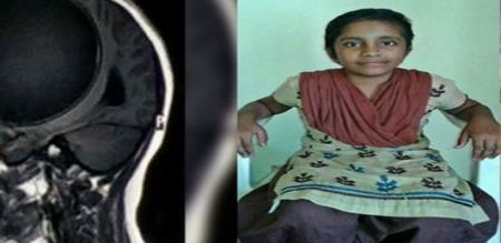 in Delhi a girl affected by brain Tapeworms issue