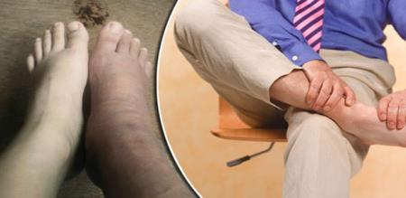 HEAVY PAIN LEGS., WILL TO CONTACT DOCTOR
