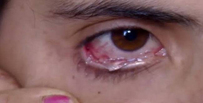 girl infected by different disease in eyes