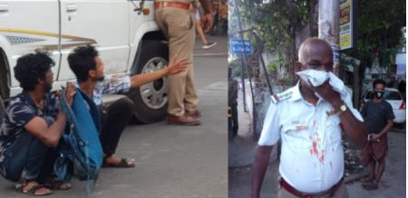 Chennai Pullingow Arrest Accident police Injury
