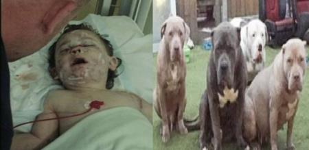 in British dogs byte small baby hardly injuries
