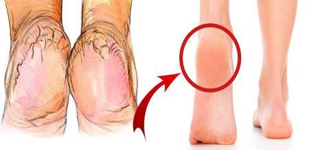 how to remove Eruptions in the foot