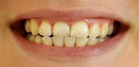 How to avoid stains in teeth