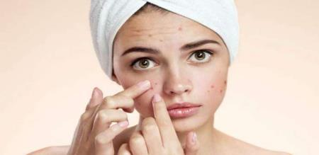 how to remove pimples permantly