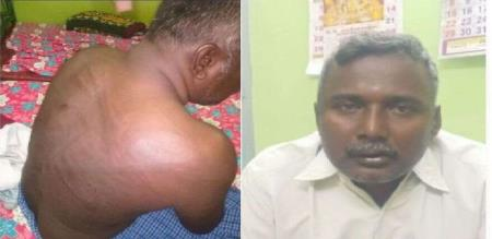 in selam sexual torture man attacked by husband