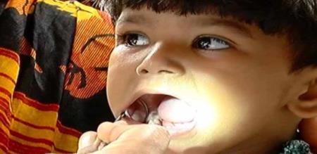 in India babies affected teeth type diseases