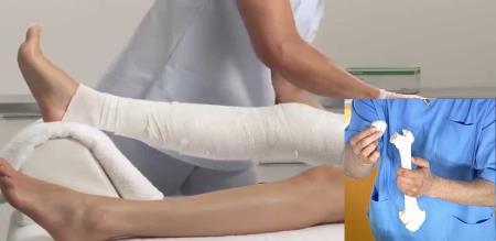 men left his leg due to bad treatment